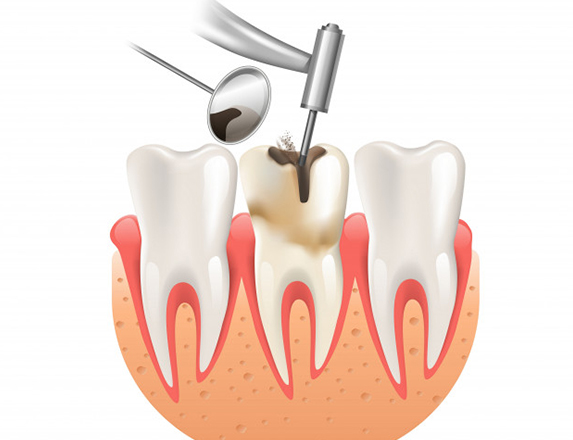 What Can You Expect When Having A Root Canal Done