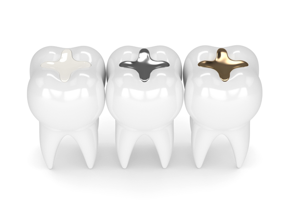 Who Is A Good Candidate For Dental Fillings