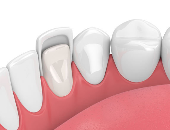 Who Is A Good Candidate For Porcelain Veneers 1