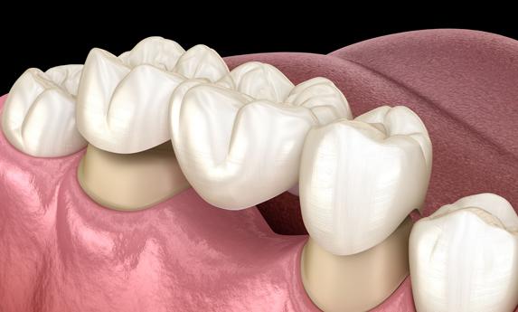 Why Are Dental Bridges Needed