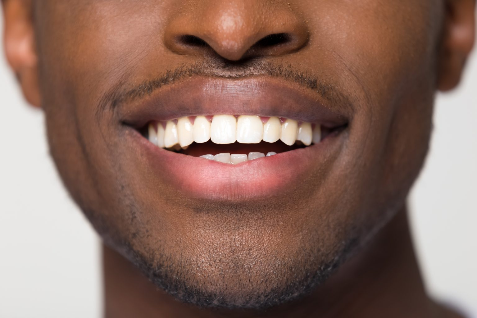 Close Up View Of Beaming Orthodontic White Wide Male Smile